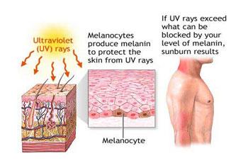 Sunburn, UV Overexposure & Skin Cancer: Prevention or Cure?