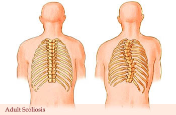 Adult Scoliosis