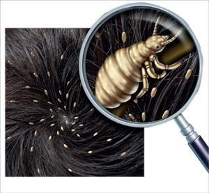 Could Your Child Have head lice?