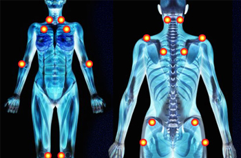 Fibromyalgia: Information and Treatment