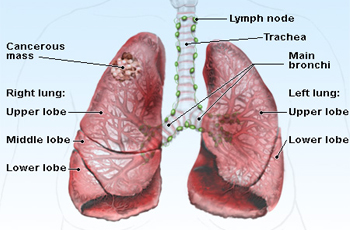 Actual human lungs - photo#19