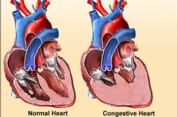 Congestive Heart Failure and the Heart Healthy Diet