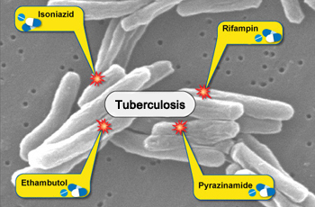 How Is Tuberculosis Treated?