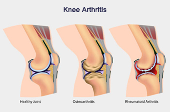Knee Arthritis and How It Affects You