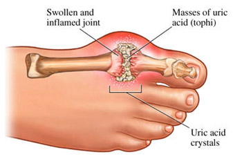 Disease of the Rich - Gout