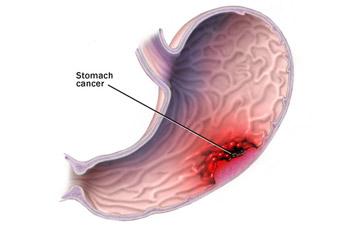 stomach-cancer
