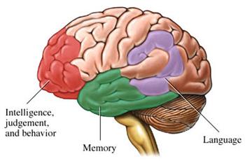 Alzheimer's disease, The Horrific Stealer