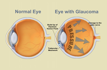 Optical Glaucoma
