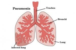 Лечится ли пневмония в домашних условиях
