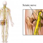 Demystifying Sciatica