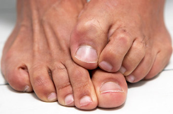 Causes and Prevention of Toenail Fungus