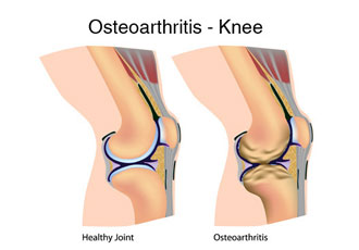 Osteoarthritis: Cause and Symptoms
