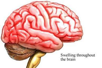 Meningitis and Encephalitis: What's the Difference?