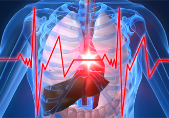 Heart attack, the most common heart disease