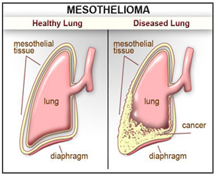 Who is at risk from mesothelioma cancer?