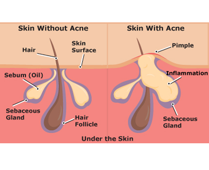 What is acne? Symptoms and causes