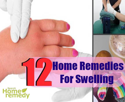 Swelling home remedy