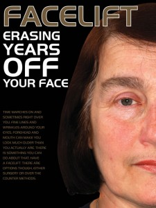 Facelift – Erasing Years Off Your Face