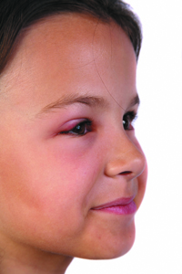 Pink Eye - Conjunctivitis - The Simple Details And Also The Cures