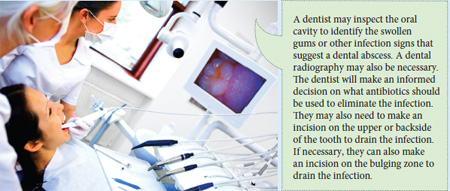 Bad Breath and Cavities