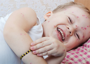 Chickenpox: How to Ease the Itch