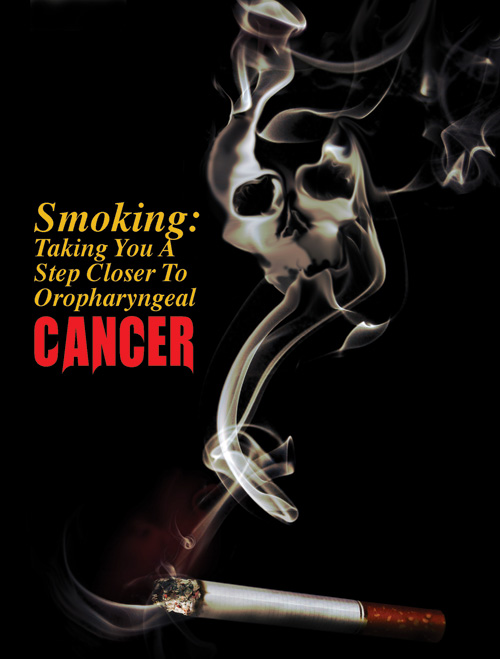 Smoking: Taking You A Step Closer To Oropharyngeal Cancer