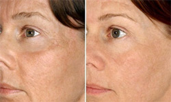 AGE GRACEFULLY with FILLERS, BOTOX, PEELS AND MESOTHERAPY!