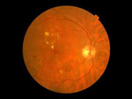 Are you Diabetic? Get your eyes screened for Diabetic eye disease today?