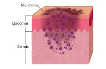 The Causes and Symptoms of Melanoma