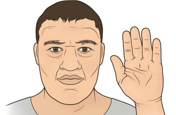 Acromegaly: Overgrowth condition in humans