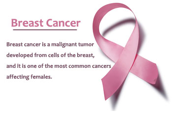 Breast-Cancer-Its-Causes