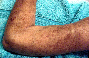 Chronic Scleroderma