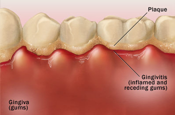 Gingivitis Symptoms and Treatment