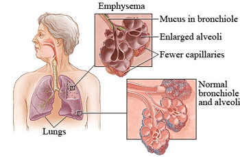 Emphysema---Problem-Caused-To-Your-Lungs