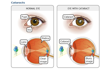Opacity Cataracts