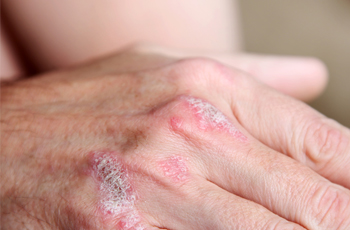 Psoriasis – Escape This Disease to Enjoy Fresh and Healthy Skin