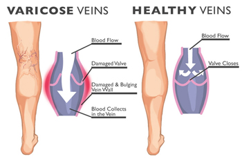 The Truth about Varicose Veins