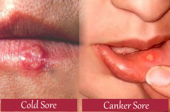 cold-sore-and-canker-sore