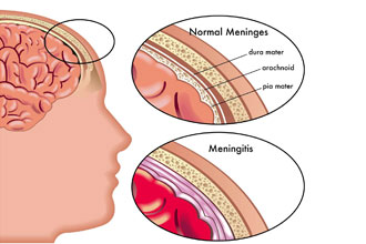 Meningitis and Encephalitis: What's the Difference?