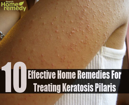 10 Effective Home Remedies For Treating Keratosis Pilaris