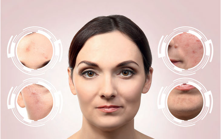 acne-facial-zones