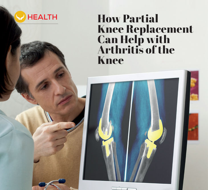 How partial knee replacement can help with arthritis of the knee